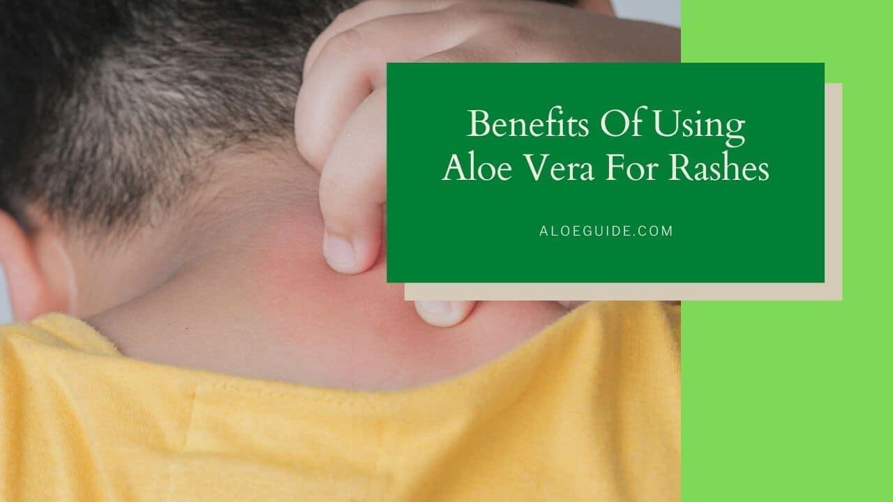 Aloe Vera For Rashes